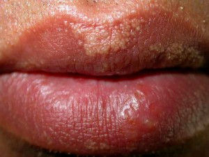 fordyce-spots-on-lips-pictures-4