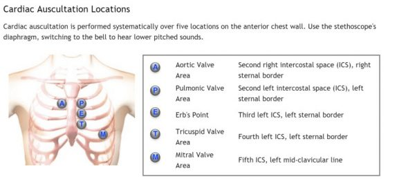 cardiac-auscultation-locations