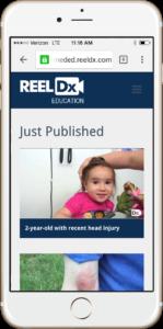 reeldx_signup1-ssmall-149x300